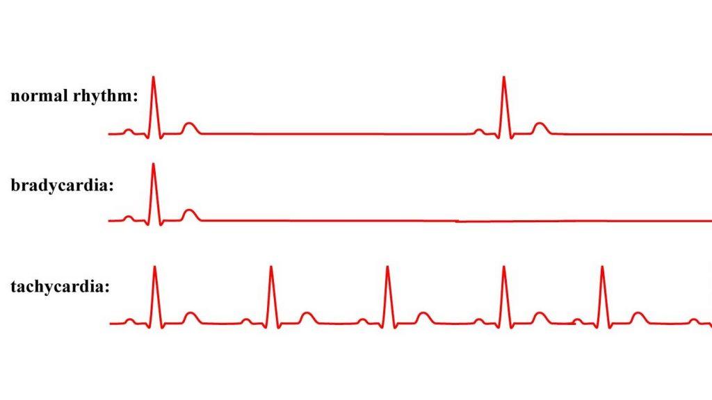 Srčana aritmija