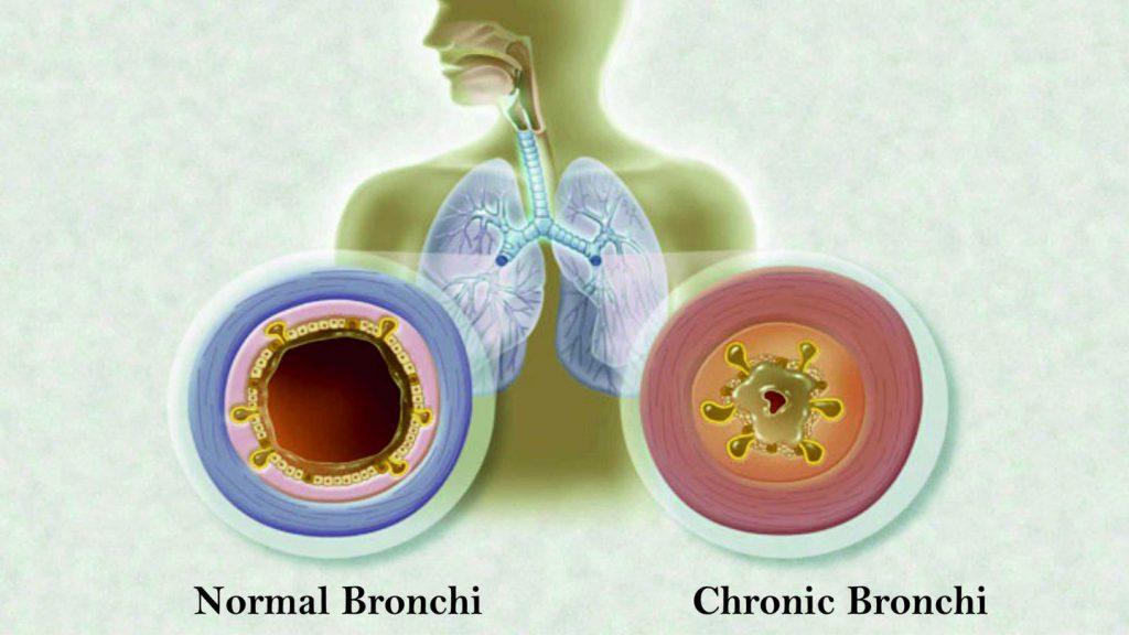 Hronični bronhitis