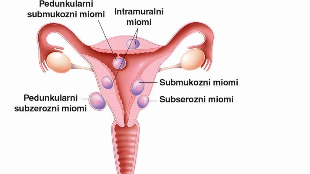 Miomi materice u trudnoći