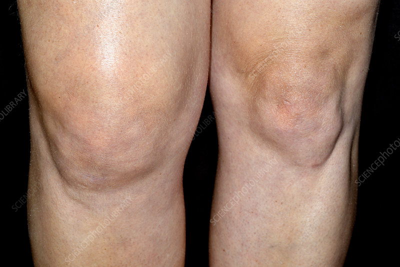 Homeopatsko lečenja otoka kolena